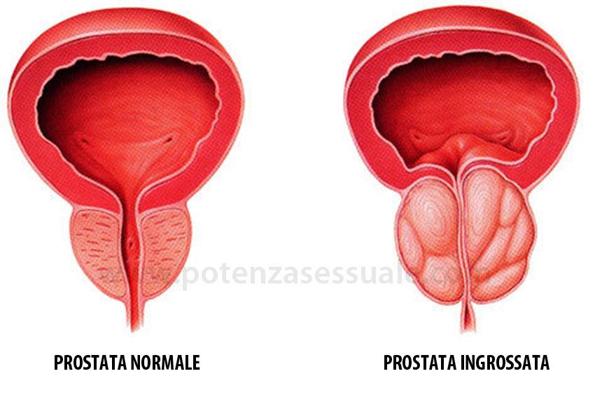 Prostata eiaculazione indotta e la salute sessuale maschile